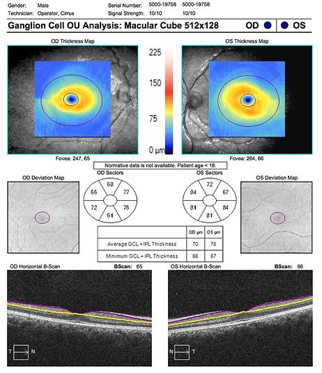 Neuro-Ophthalmology 11-4.png