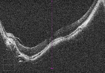 Retina 33-9.png