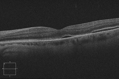 Retina 35-2.png