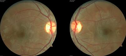 Retina 17-1.png