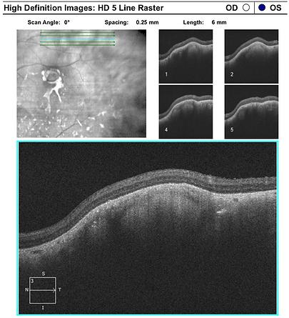 Retina 36-2.png