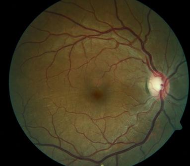Neuro-Ophthalmology 12-3.png