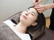 美容鍼・美顔鍼の施術