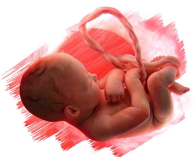 Todo se humano tiene derecho a vivir.