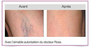 Dr Doly | Traitements Vasculaires au Laser Couperose érythrose Clermont-Ferrand/Beaumont