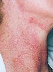 Laser vasculaire couperose eryhtroseIPL colorant pulsé ktp toulouse cugnaux