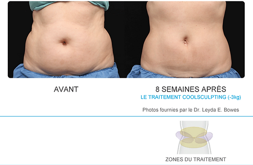 Coolsculpting cryolipolyse à Perpignan Cabestany