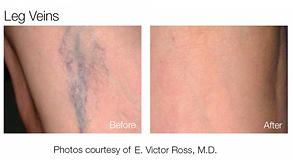 Laser vasculaire erythrose couperose Brest