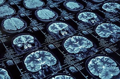 brain-scan.xb15ef8fd.jpg