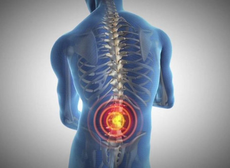 What you need to know about Sciatica.