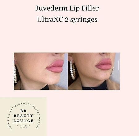 big lip.jpg