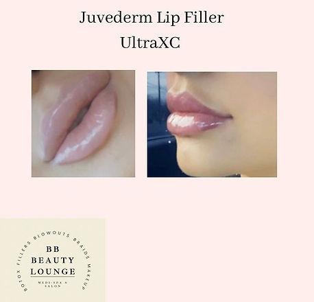 lipts.jpg