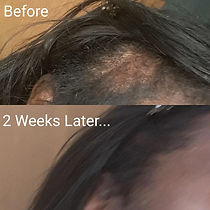 Serum Before and After Pic.jpeg