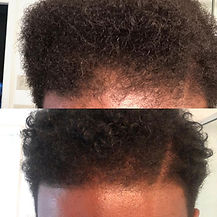Serum before and after male hair.jpeg