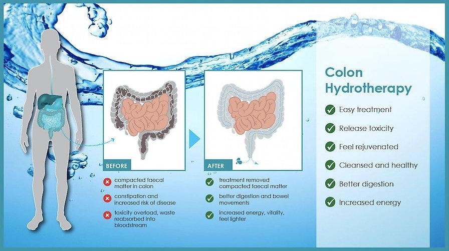 colon hydro_edited.jpg
