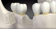 Livro - Guia completo sobre implante dentário
