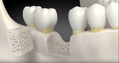 Enxerto ósseo dentário: o que é, quem precisa, como é feito