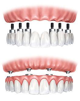 Implante dentário de boca toda