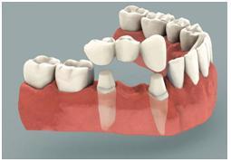 Implante dentario de dentes
