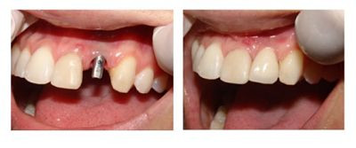 Implantes dentários de dentes