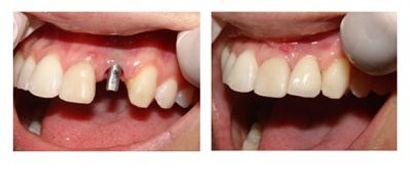 Foto real implante na boca