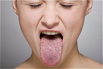 Sintomas da boca seca