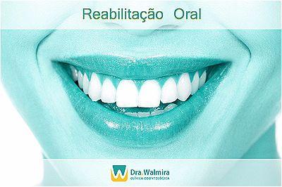 Dúvidas sobre Reabilitação Oral