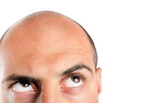 Waarom we kaal worden en wat we ertegen kunnen doen.