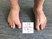 pied deformé.jpg