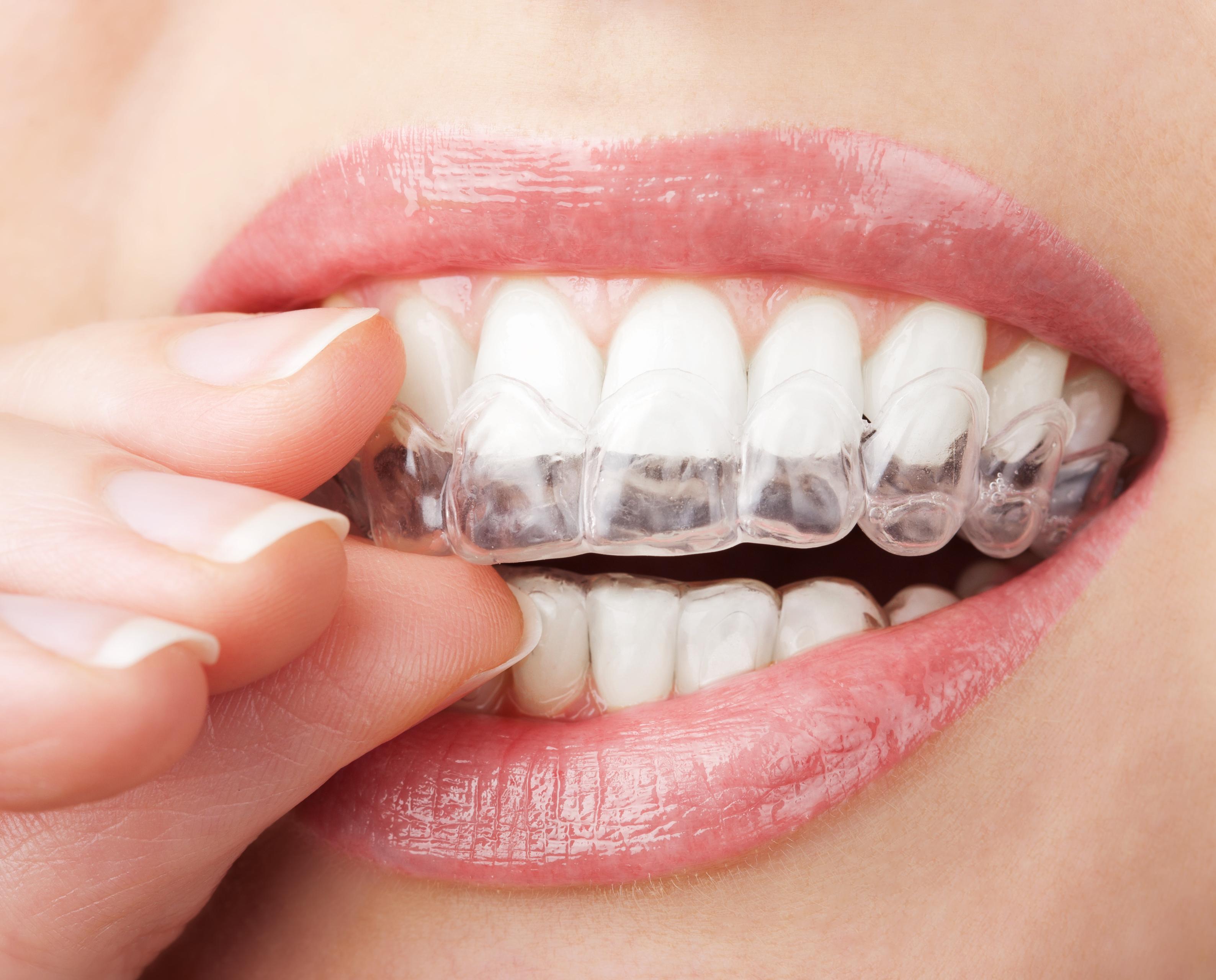 Zahnfehlstellungen