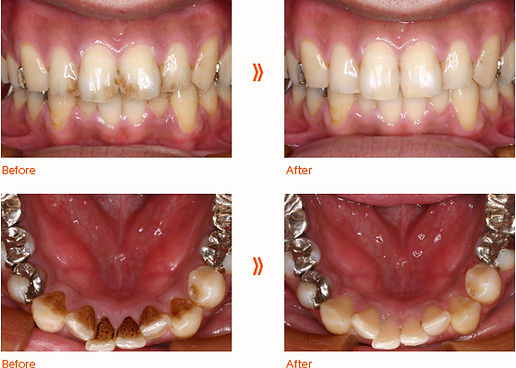 toothbleaching_photo02.jpg