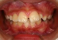 子供の上顎前突症例.jpg