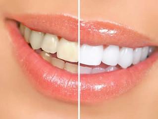 5 Dicas para manter seus dentes sempre brancos