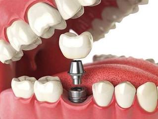 Como funcionam os implantes dentários