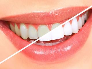 Tudo o que você precisa saber sobre o clareamento dental