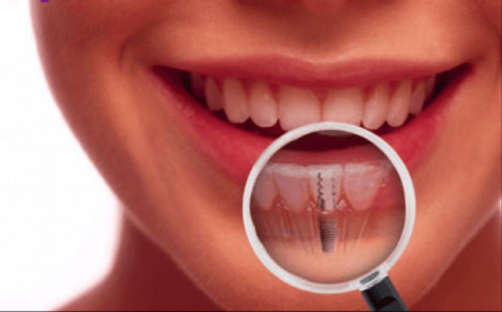 Implantes Dentários Florianópolis São José