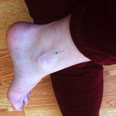 A self-done tattoo by a participant at a workshop.  This photo wastaken a couple years after the completion of the tattoo.  Baltimore, Maryland, 2016.