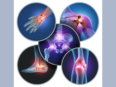 What to Know About Joint Pain