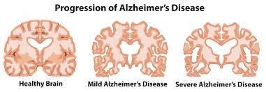 The Progression of Alzheimer's Disease