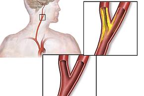 Carotid_artery_stenosis.png