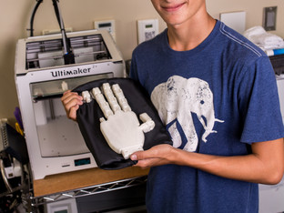 Prosthetic Hand That You Can Control With Your Mind
