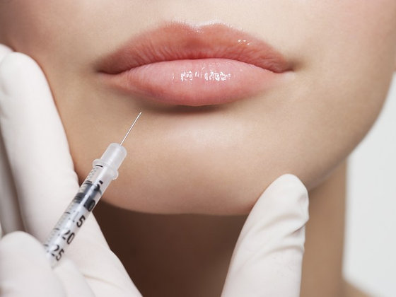 Cosmetic Fillers | Consultation Required