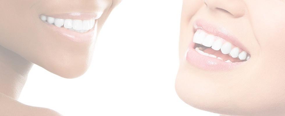 teeth-whitening-header_edited.jpg