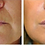 Thumbnail: Cosmetic Fillers | Consultation Required