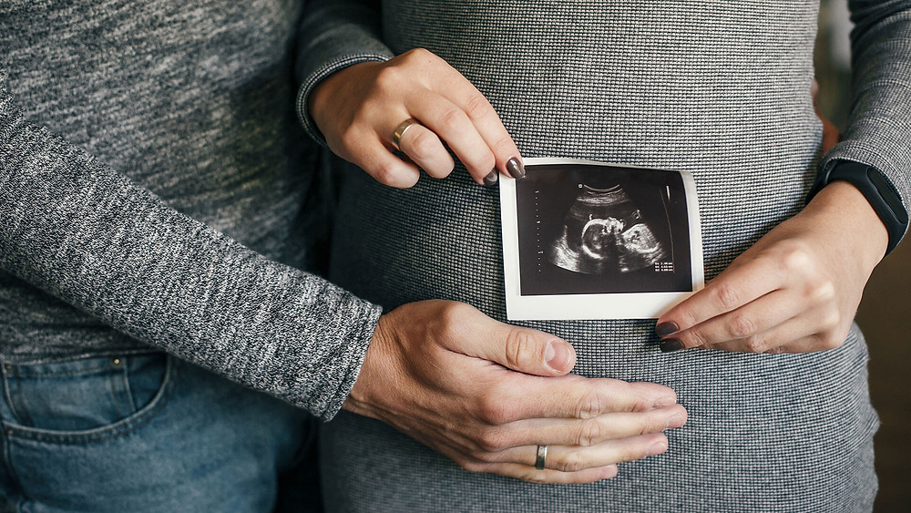 A pregnant lady holding up an ultrasound photo
