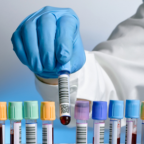 Labs tests you should have