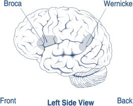 An image of a brain with highlighted areas in the front affecting Brocas Aphasia and highlighted areas at the back of the brain affected by Wernicke's Aphasia