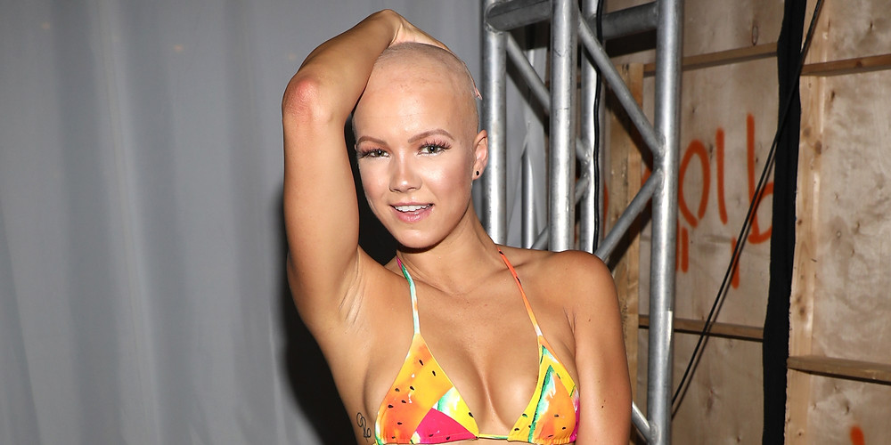 A beautiful model smiles at the camera, her right arm is raised and her hand rests on top of her head. She has alopecia. She wears a watermelon print bikini top and only her upper body is visible in the image.