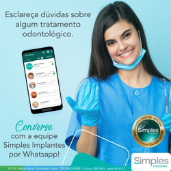 Post Simples Implantes