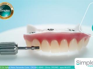 Dentadura Fixa: conheça os tipos de materiais mais utilizados